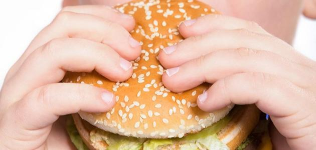 أسباب السمنة وزيادة الوزن